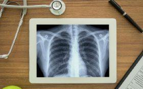 نقش آنتیاکسیدان در گسترش سرطان ریه