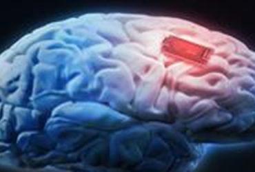 بلایی که کرونا بر «مغز» وارد میکند