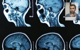 انواع بیماری ام اس با هوش مصنوعی ابداعی محقق ایرانی شناسایی شد